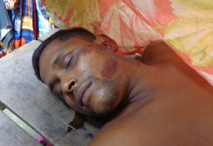 Badarganj photo dead